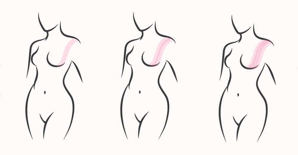 breast taping method
