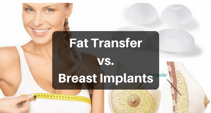 Fat Transfer Vs Breast Implants In Depth Guide You Must Know
